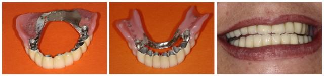 Tamara - Kombinierte Zahnersatz