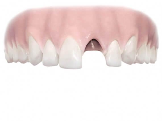 Zahnimplantaten - Einzelnen Zahnes 01