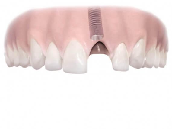 Zahnimplantaten - Einzelnen Zahnes 02