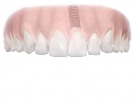 Zahnimplantaten - Einzelnen Zahnes 04