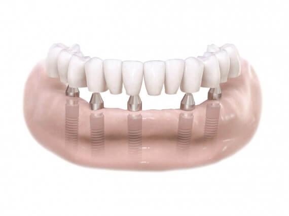 Zahnimplantaten - Kiefer Festsitzender Zahnersatz 02