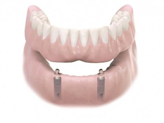 Zahnimplantaten - Kiefer Herausnehmbarer Zahnersatz 02