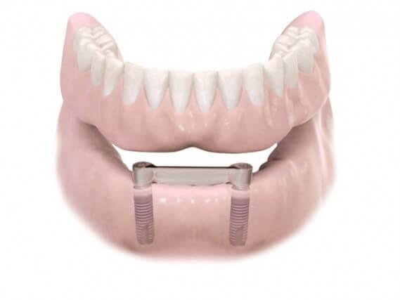Zahnimplantaten - Kiefer Herausnehmbarer Zahnersatz 03