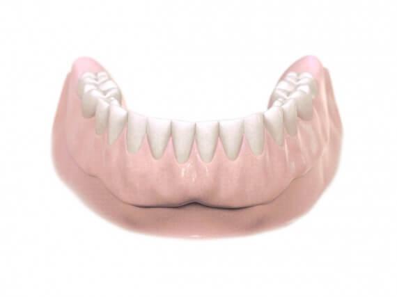 Zahnimplantaten - Kiefer Herausnehmbarer Zahnersatz 04