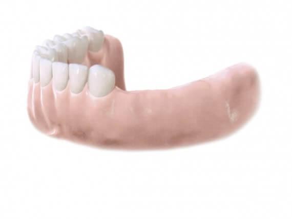 Zahnimplantaten - Mehreren Zähnen 01