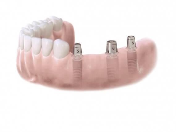 Zahnimplantaten - Mehreren Zähnen 02