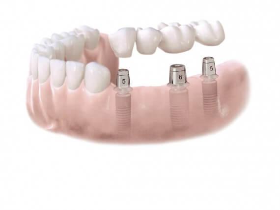 Zahnimplantaten - Mehreren Zähnen 03