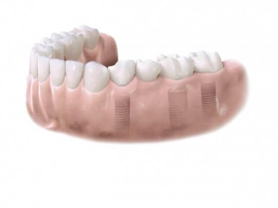 Zahnimplantaten - Mehreren Zähnen 04